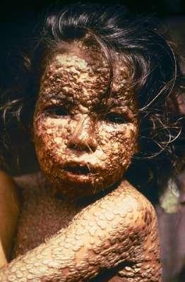 الصحة العالمية: إيبولا