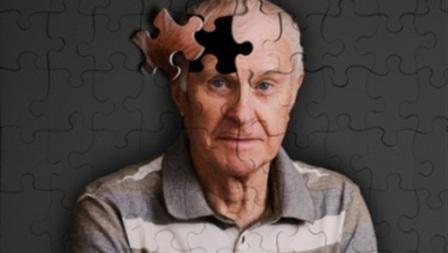 هل ينتقل مرض الزهايمر