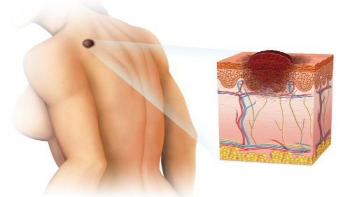 علاج جديد قد يقضي على سرطان الجلد