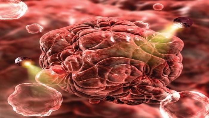 العوارض الأولى للسرطان تظهر على اليدين.. كيف تكتشفونها؟