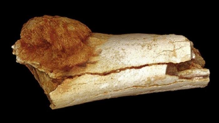 دليل يؤكد أن السرطان متواجد منذ آلالاف السنين