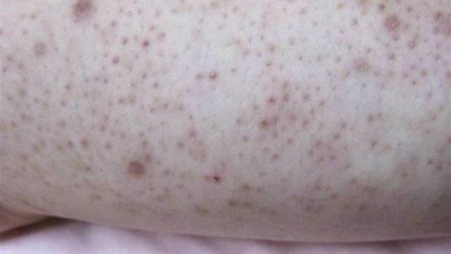 ما سبب ظهور هذه البقع الحمراء على الذراعين