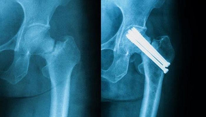 حمية غذائية تجعل متبعيها أكثر عرضة لكسور العظام بنسبة 43%