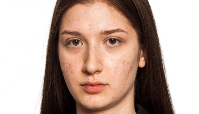 أنواع حبوب الوجه وطرق علاجها