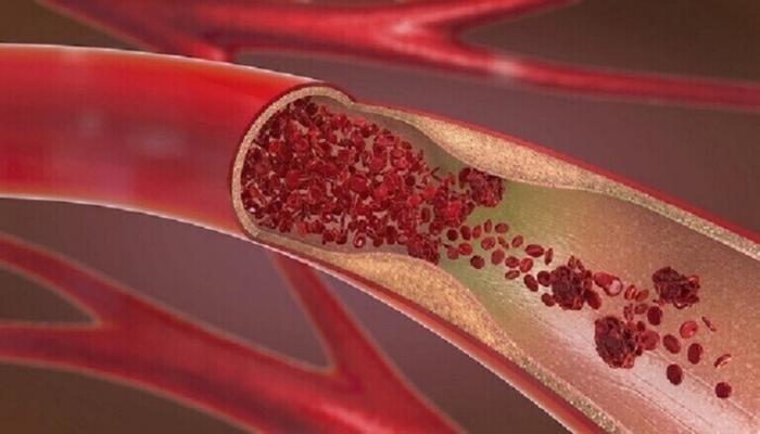 أفضل مشروب يمكن تضمينه في نظامك الغذائي لخفض الكوليسترول