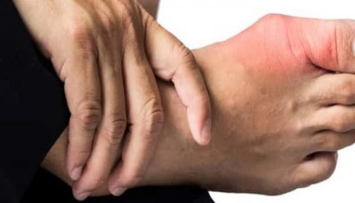 عوامل تزيد من خطر الإصابة بداء النقرس