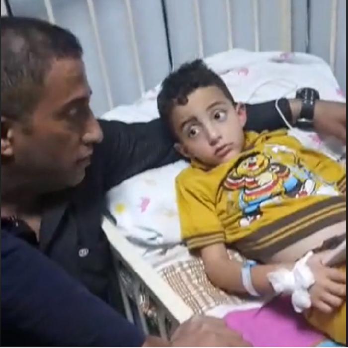 الطفل يامن مطور يعود للحياة بعد سقوطه بحفرة صرف صحي